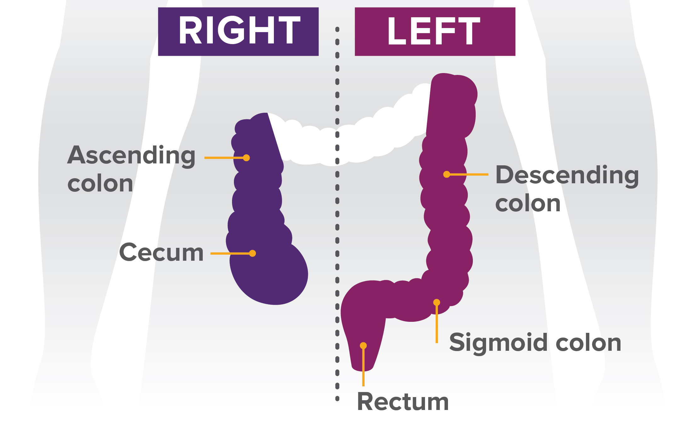 Colorectal Infogram